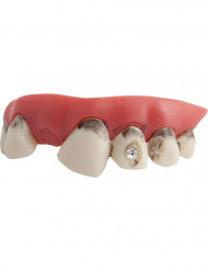 Likaiset hampaat timanttikoristeella aikuiselle