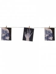 Röntgenkuvaköynnös 1,60 cm